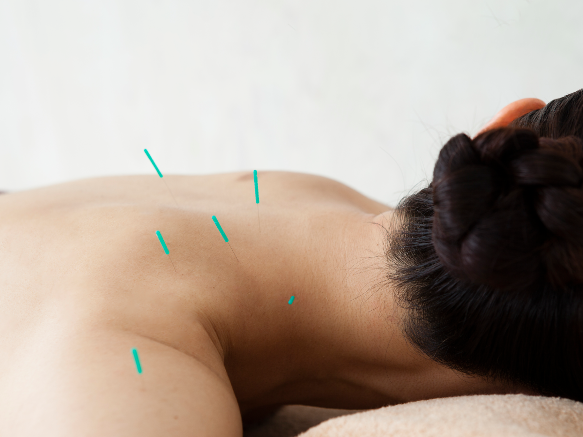 Combined osteopathy and acupuncture in assisted reproduction treatments